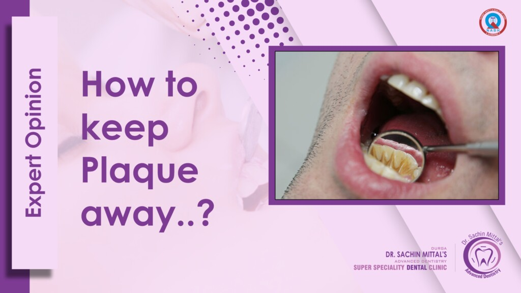 Expert Opinion How to keep plaquExpert Opinion How to keep plaque away from Teethe away from Teeth